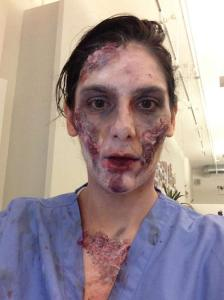 First phase of zombie makeup, with latex, cotton balls and fake blood